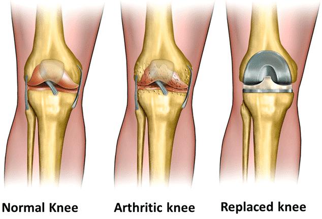 total-knee-replacement-drsamsani2